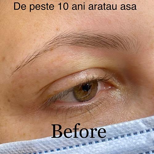 Before Alina